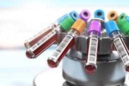 Medical Lab Tests